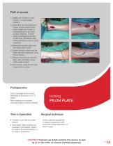 PL - Pilon Locking Plate small - 5