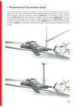 UOL - Ulna Osteotomy Locking Plate - 13