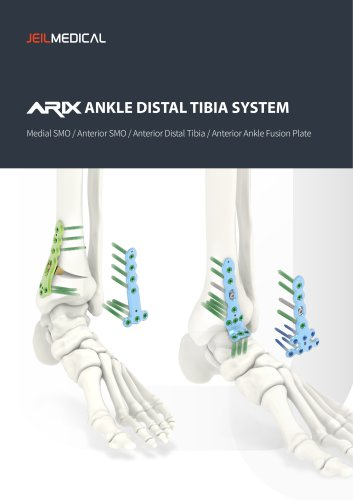 Orthopedic - ARIX Ankle System - Distal Tibia SMO and Fusion