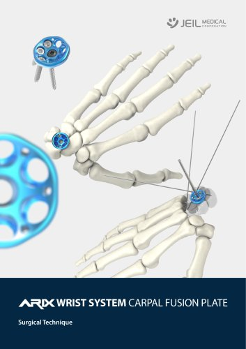 Orthopedic - ARIX Wrist System Carpal Fusion Plate