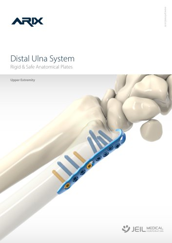 Orthopedic - ARIX Wrist System Distal Ulna