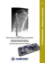 (MPHT) Multilocking Proximal Humeral Treatment nailing