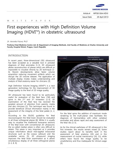 First experiences with HDVI? in obstetric ultrasound