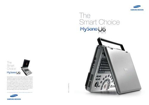 MySono U6 Ultrasound System