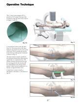 Gamma3 Trochanteric Nail 180 - 11