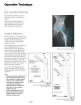 Gamma3 Trochanteric Nail 180 - 8