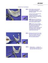 Hoffmann ®  II Compact™   External Fixation System   For Use in Maxillofacial Surgery - 4