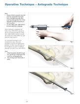 Humeral Nailing System - 12