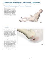 Humeral Nailing System - 9