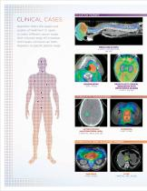 Radiotherapy and Radiosurgery with RapidArc - 12