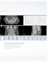Radiotherapy and Radiosurgery with RapidArc - 7