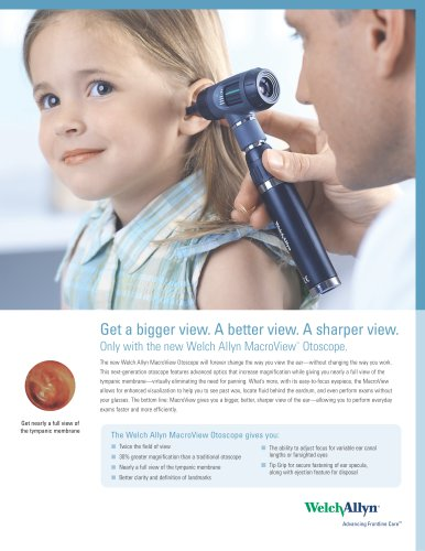 MacroView Otoscope Sales Information, Brochure