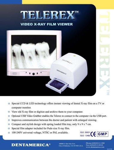 TELEREX Video X-ray Film Viewer