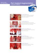 Peri-Implant Augmentation