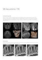 3D Accuitomo 170 - 2
