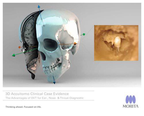 3D Accuitomo Clinical Case Evidence