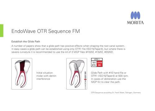 EndoWave OTR Sequence FM