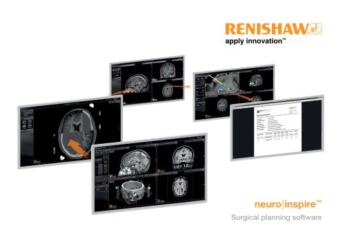 Brochure : neuroinspire surgical planning software