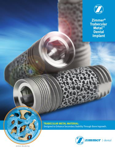 Trabecular MetalTM Dental Implant Brochure