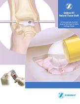 DeNovo® NT Natural Tissue Graft Arthroscopically-Assisted Surgical Technique for Ankle Cartilage Repair