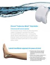 Zimmer Trabecular Metal Total Ankle - 2