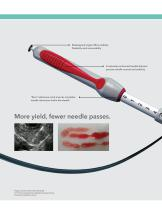 EchoTip ProCore HD Ultrasound Biopsy Needle - 4