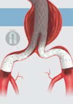 Endovascular Aortic Repair - Abdominal - 12