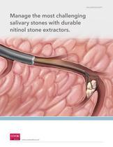 Salivary Stone Extractors - 1