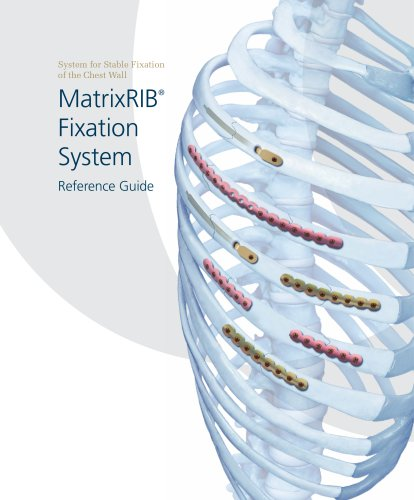 MatrixRIB®FixationSystem