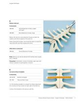 Titanium Sternal Fixation System - 10