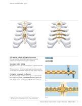 Titanium Sternal Fixation System - 4