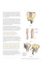 TruMatch Pin Guides - 5
