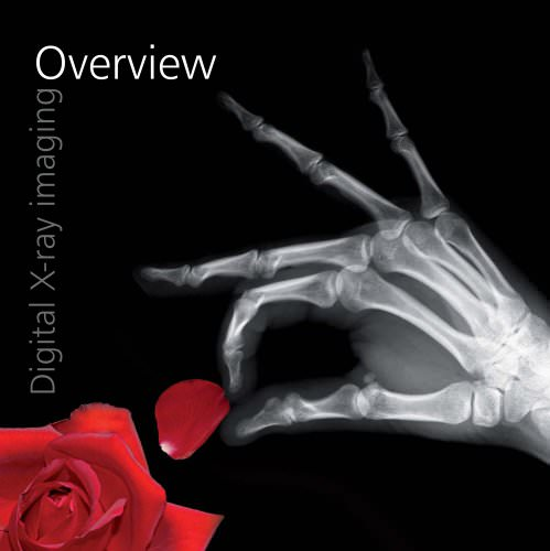 Digital X-ray imaging - Overview