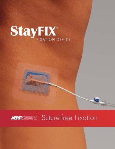 StayFIX Fixation Device