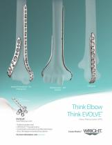 EVOLVE Elbow Plating System (EPS) - 1