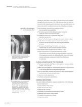 SWANSON Flexible Hinge Toe Surgical Technique ? SOSTL001 - 8