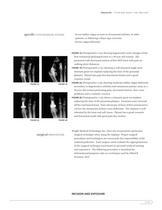 SWANSON Titanium Great Toe Surgical Technique ? SOSTL002 - 7