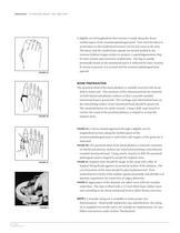 SWANSON Titanium Great Toe Surgical Technique ? SOSTL002 - 8
