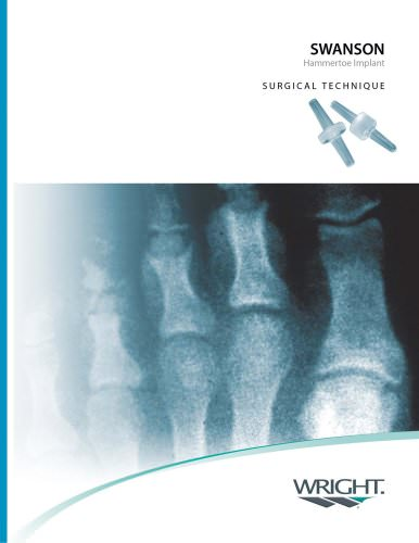 SWANSON® (Weil) Hammertoe Surgical Technique ? SOSTL004