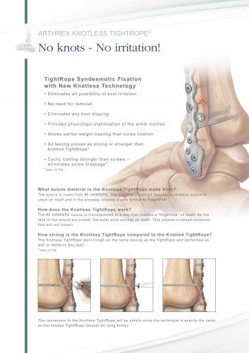 Arthrex Knotless TightRope® - LS2-0426-EN