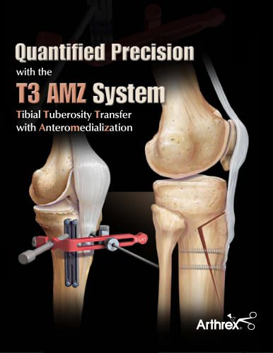 Quantified Precision with the T3 AMZ System - Tibial Tuberosity Transfer with Anteromedialization - LS0145