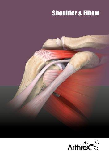 Shoulder Repair Technology