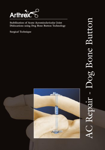 Stabilization of Acute Acromioclavicular Joint Dislocations using Dog Bone Button Technology