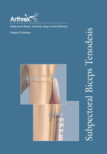 Subpectoral Biceps Tenodesis using Cortical Buttons
