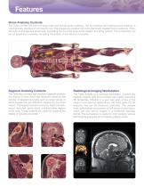 Anatomage Table - 6
