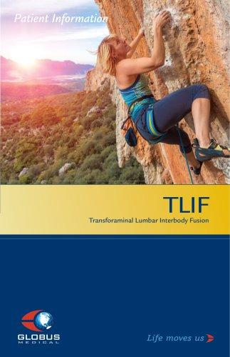 TLIF patient brochure
