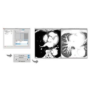 módulo de software para mamografia
