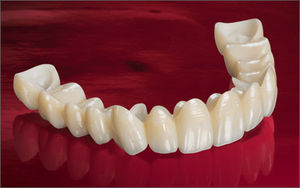 coroa dentária em zircônia