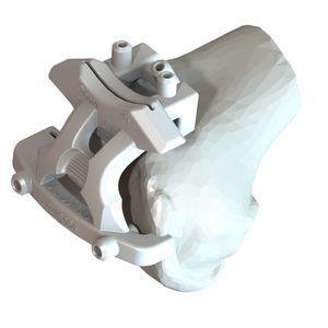 guia de ressecção para prótese de joelho