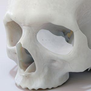 implante periorbital sob medida
